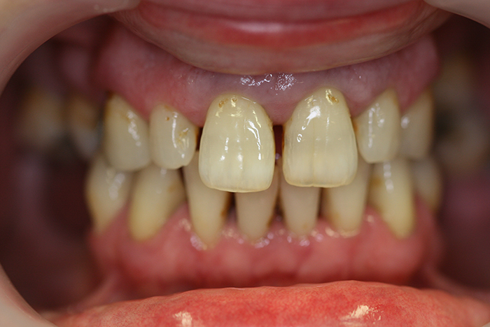 Composite Bonding - Before Treatment