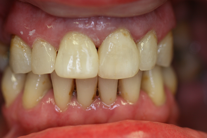 Composite Bonding - After Treatment