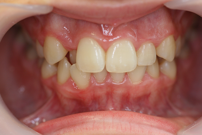 Comprehensive Orthodontics - Before Treatment