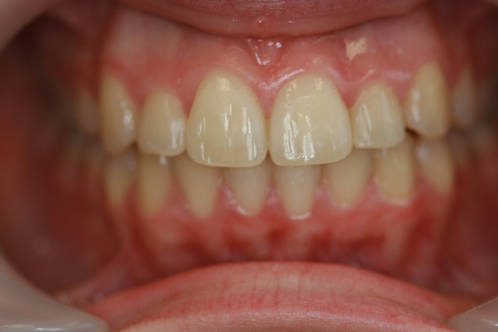 Comprehensive Orthodontics - After Treatment