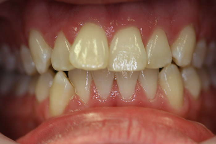 Short Term Orthodontics - Before Treatment