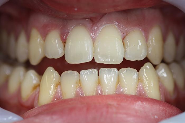 Short Term Orthodontics - After Treatment