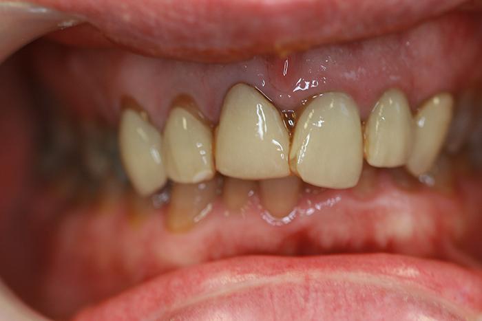 Veneers - Before Treatment