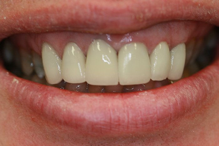 Veneers - After Treatment