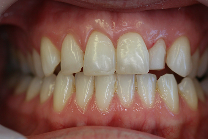 Veneers - Before Treatment
